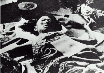 """صور لضحايا القنبلة الذرية هيروشيما لا حول ولا قوة الا بالله """"فقط لاصحاب القلوب القوية"""" A-bomb-hiroshima-victim-1"""