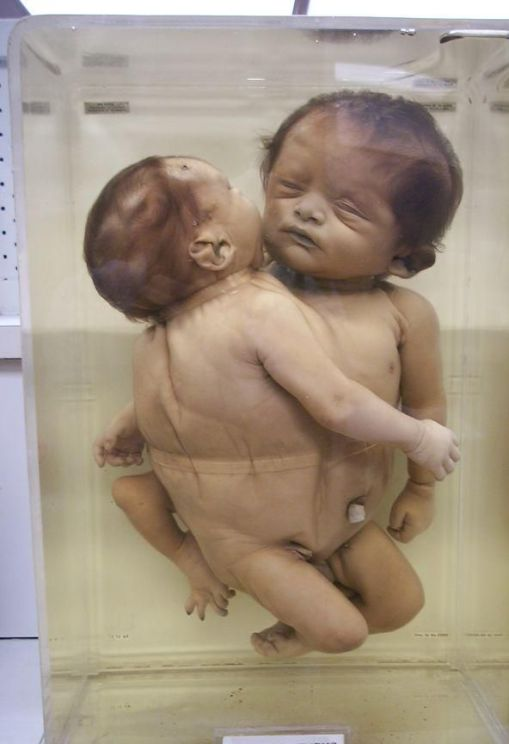 Birth defects among the children of atomic-bomb survivors ...